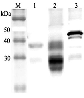 Western blot analysis using anti-Clusterin (mouse), pAb at 1:2000 dilution. 1: Mouse serum (2 ul). 4: Mouse seminal plasma. 5: Mouse Clusterin (nuclear form) (His-tagged).