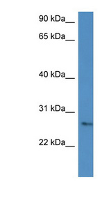 CMA1 / Mast Cell Chymase antibody western blot of COLO205 cell lysate.  This image was taken for the unconjugated form of this product. Other forms have not been tested.