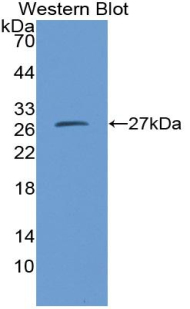 Western blot of recombinant CMA1 / MCT1 / Chymase.