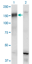 Western Blot analysis of BCR expression in transfected 293T cell line by BCR monoclonal antibody (M01), clone 2E5.Lane 1: BCR transfected lysate (Predicted MW: 121 KDa).Lane 2: Non-transfected lysate.