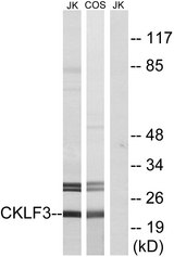 Western blot analysis of lysates from Jurkat and COS cells, using CKLF3 Antibody. The lane on the right is blocked with the synthesized peptide.