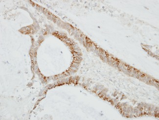 IHC of paraffin-embedded TW2.6 xenograft using CMTM6 antibody at 1:100 dilution.