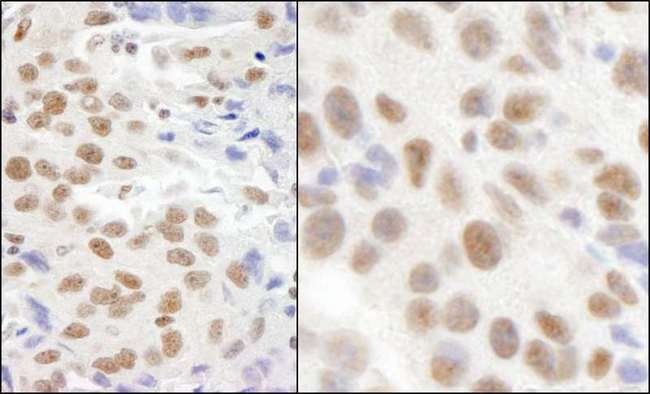 CMTR1 / FTSJD2 Antibody - Detection of Human and Mouse KIAA0082 by Immunohistochemistry. Sample: FFPE section of human breast carcinoma (left) and mouse CT26 colon carcinoma (right). Antibody: Affinity purified rabbit anti-KIAA0082 used at a dilution of 1:1000 (1 ug/ml). Detection: DAB.