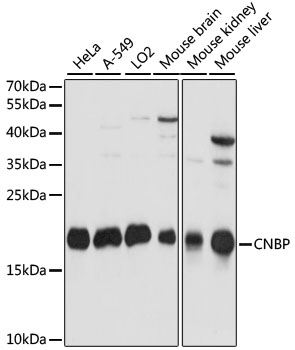 CNBP / ZNF9 Antibody - Western blot analysis of extracts of various cell lines, using CNBP antibody at 1:1000 dilution. The secondary antibody used was an HRP Goat Anti-Rabbit IgG (H+L) at 1:10000 dilution. Lysates were loaded 25ug per lane and 3% nonfat dry milk in TBST was used for blocking. An ECL Kit was used for detection and the exposure time was 5s.