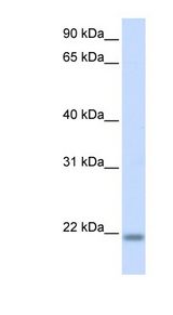 CNBP antibody LS-C101519 Western blot of Fetal Brain lysate.  This image was taken for the unconjugated form of this product. Other forms have not been tested.