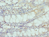 Immunohistochemistry of paraffin-embedded Human rectal tissue at dilution 1:100