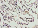 Immunohistochemistry of paraffin-embedded human lung tissue using antibody at dilution of 1:100.