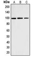 CNNM2 Antibody - Western blot analysis of Cyclin M2 expression in K562 (A); HT1080 (B); HeLa (C) whole cell lysates.