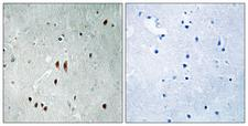 CNOT2 Antibody - Immunohistochemistry analysis of paraffin-embedded human brain, using CNOT2 (Phospho-Ser101) Antibody. The picture on the right is blocked with the phospho peptide.