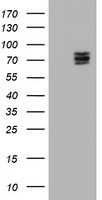 HEK293T cells were transfected with the pCMV6-ENTRY control (Left lane) or pCMV6-ENTRY CNOT4 (Right lane) cDNA for 48 hrs and lysed. Equivalent amounts of cell lysates (5 ug per lane) were separated by SDS-PAGE and immunoblotted with anti-CNOT4.