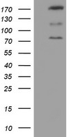 CNOT4 / CLONE243 Antibody - HEK293T cells were transfected with the pCMV6-ENTRY control (Left lane) or pCMV6-ENTRY CNOT4 (Right lane) cDNA for 48 hrs and lysed. Equivalent amounts of cell lysates (5 ug per lane) were separated by SDS-PAGE and immunoblotted with anti-CNOT4.