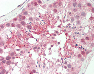 Human Testis: Formalin-Fixed, Paraffin-Embedded (FFPE).  This image was taken for the unconjugated form of this product. Other forms have not been tested.