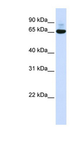 CNOT4 / CLONE243 Antibody - CNOT4 antibody Western blot of 293T cell lysate. This image was taken for the unconjugated form of this product. Other forms have not been tested.