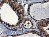 IHC of paraffin-embedded Adenocarcinoma of Human breast tissue using anti-CNOT4 mouse monoclonal antibody.