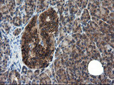 IHC of paraffin-embedded Human pancreas tissue using anti-CNOT4 mouse monoclonal antibody.