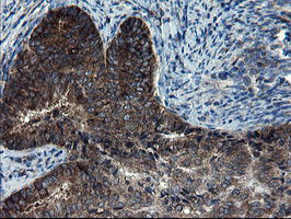 IHC of paraffin-embedded Adenocarcinoma of Human endometrium tissue using anti-CNOT4 mouse monoclonal antibody.