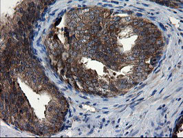 IHC of paraffin-embedded Carcinoma of Human prostate tissue using anti-CNOT4 mouse monoclonal antibody.