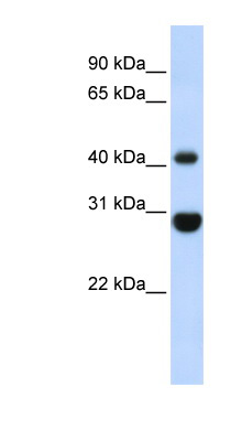 CNP antibody Western blot of Fetal Muscle lysate. This image was taken for the unconjugated form of this product. Other forms have not been tested.