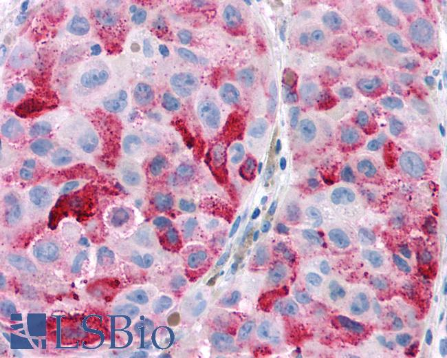 Anti-CNR2 / CB2 antibody IHC of human Skin, Melanoma. Immunohistochemistry of formalin-fixed, paraffin-embedded tissue after heat-induced antigen retrieval.