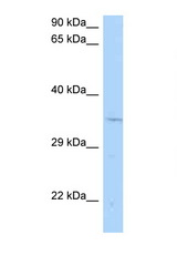 CNTD1 Antibody - CNTD1 / CNTD antibody Western blot of Rat Brain lysate. Antibody concentration 1 ug/ml.  This image was taken for the unconjugated form of this product. Other forms have not been tested.