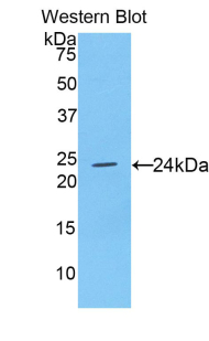 Western blot of recombinant CNTF.  This image was taken for the unconjugated form of this product. Other forms have not been tested.