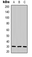 Western blot analysis of CNTF expression in HeLa (A); mouse brain (B); rat brain (C) whole cell lysates.