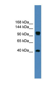 CNTN1 / Contactin 1 antibody LS-C116852 Western blot of Fetal Brain lysate.  This image was taken for the unconjugated form of this product. Other forms have not been tested.