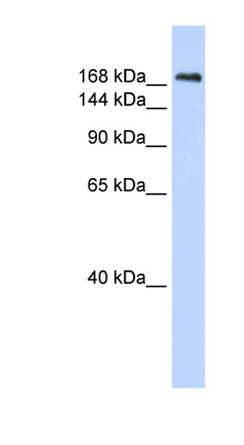 CNTNAP1 / CASPR antibody LS-C102173 Western blot of Fetal Lung lysate.  This image was taken for the unconjugated form of this product. Other forms have not been tested.