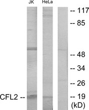 Cofilin Antibody - Western blot analysis of lysates from Jurkat and HeLa cells, using Cofilin Antibody. The lane on the right is blocked with the synthesized peptide.
