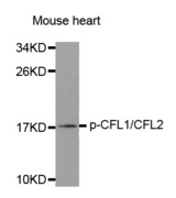 Cofilin Antibody - Western blot analysis of extracts from Mouse heart tissue.