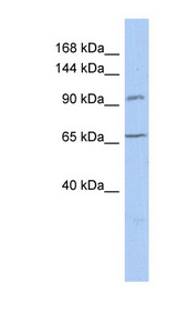 COG5 antibody LS-C111280 Western blot of THP-1 cell lysate.  This image was taken for the unconjugated form of this product. Other forms have not been tested.