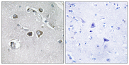Immunohistochemistry analysis of paraffin-embedded human brain tissue, using Collagen XI alpha2 Antibody. The picture on the right is blocked with the synthesized peptide.