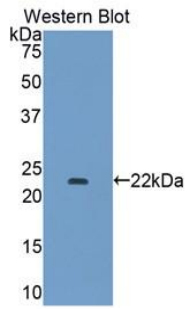 Western blot of recombinant COL15A1 / Collagen XV.