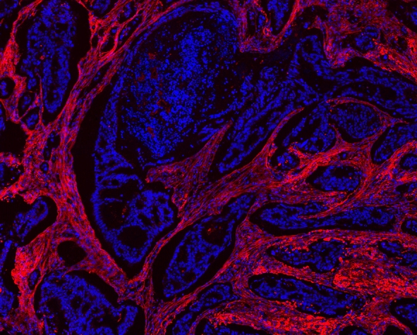 COL1A1 / Collagen I Alpha 1 Antibody - IF analysis of Collagen I/COL1A1 using anti-Collagen I/COL1A1 antibody Collagen I/COL1A1 was detected in paraffin-embedded section of human mammary tissue tissues. Heat mediated antigen retrieval was performed in citrate buffer (pH6, epitope retrieval solution ) for 20 mins. The tissue section was blocked with 10% goat serum. The tissue section was then incubated with 1µg/mL rabbit anti-Collagen I/COL1A1 Antibody overnight at 4°C. Cy3 Conjugated Goat Anti-Rabbit IgG was used as secondary antibody at 1:100 dilution and incubated for 30 minutes at 37°C. The section was counterstained with DAPI. Visualize using a fluorescence microscope and filter sets appropriate for the label used.