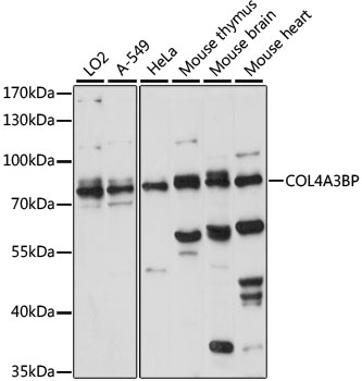 COL4A3BP / CERT Antibody - Western blot analysis of extracts of various cell lines, using COL4A3BP antibody at 1:1000 dilution. The secondary antibody used was an HRP Goat Anti-Rabbit IgG (H+L) at 1:10000 dilution. Lysates were loaded 25ug per lane and 3% nonfat dry milk in TBST was used for blocking. An ECL Kit was used for detection and the exposure time was 15s.