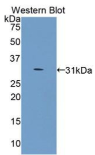 Western blot of recombinant COL4A5 / Collagen IV.  This image was taken for the unconjugated form of this product. Other forms have not been tested.