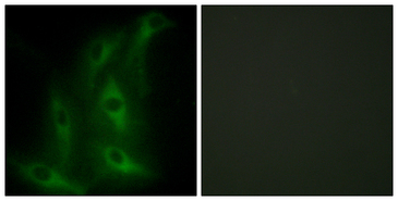 Immunofluorescence analysis of HeLa cells, using Collagen IV alpha6 Antibody. The picture on the right is blocked with the synthesized peptide.