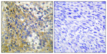 Immunohistochemistry analysis of paraffin-embedded human cervix carcinoma tissue, using Collagen IV alpha6 Antibody. The picture on the right is blocked with the synthesized peptide.