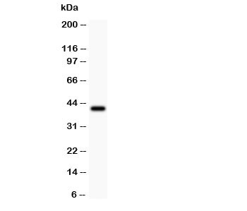 Western blot testing of Collagen IV antibody and recombinant human protein 0.5ng