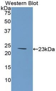 Western blot of recombinant COL6A1 / Collagen VI.