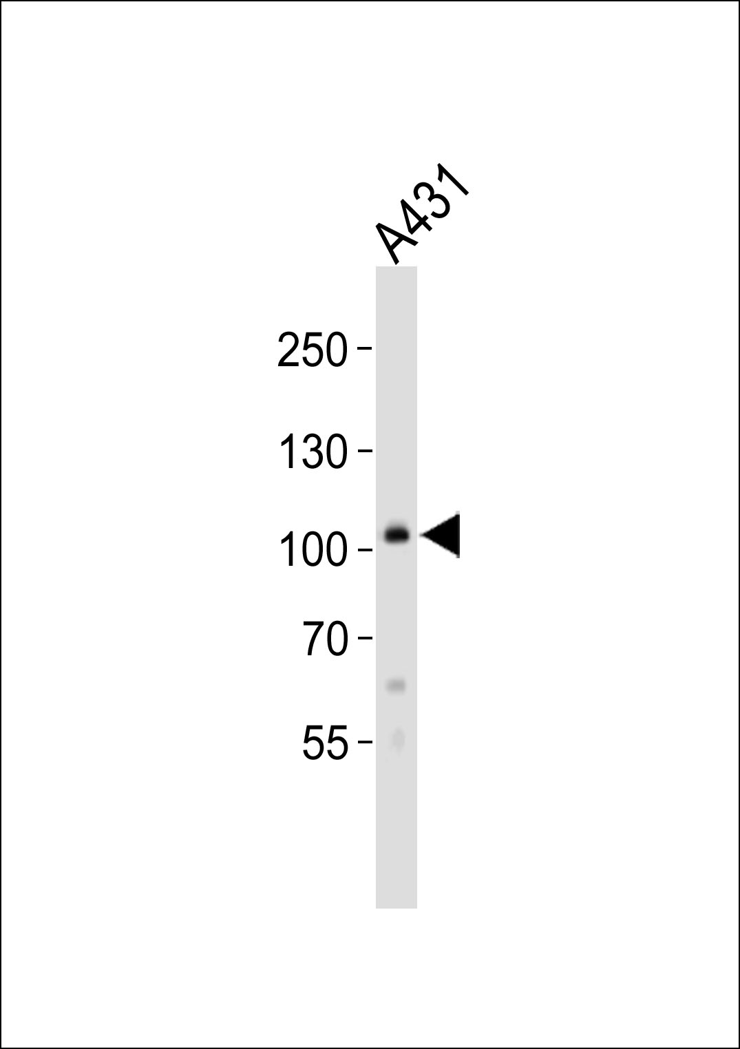 Western blot of lysate from A431 cell line, using COL6A1 Antibody. Antibody was diluted at 1:1000. A goat anti-rabbit IgG H&L (HRP) at 1:10000 dilution was used as the secondary antibody. Lysate at 20ug.