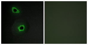 Immunofluorescence of COS7 cells, using Collagen VII alpha1 Antibody. The sample on the right was incubated with synthetic peptide.