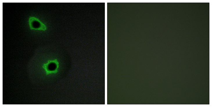 Immunofluorescence analysis of COS7 cells, using Collagen VII alpha1 Antibody. The picture on the right is blocked with the synthesized peptide.