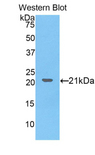 Western blot of recombinant COL8A1 / Collagen VIII.  This image was taken for the unconjugated form of this product. Other forms have not been tested.