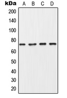 Western blot analysis of Collagen 8 alpha 1 expression in MDA-MB453 (A); A549 (B); SP2/0 (C); PC12 (D) whole cell lysates.