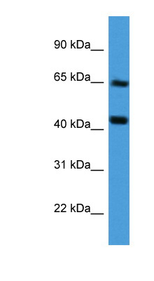 COL8A2 antibody Western blot of Fetal Liver lysate.  This image was taken for the unconjugated form of this product. Other forms have not been tested.