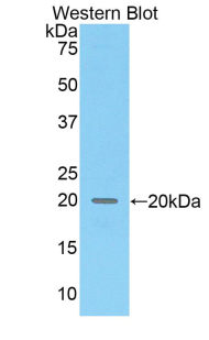 Western blot of recombinant COL8A2 / Collagen VIII.  This image was taken for the unconjugated form of this product. Other forms have not been tested.