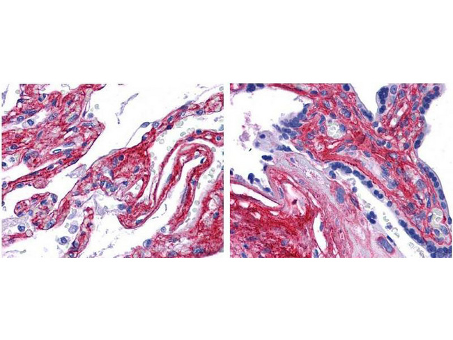 Collagen V Antibody - Anti collagen V antibody showed strong staining in FFPE sections of human lung (left) with strong staining within alveoli, vessels, and in connective tissue spaces; and placenta (right) with strong staining observed in stromal and connective tissue spaces and vessel walls. Slides were steamed in 0.01 M sodium citrate buffer, pH 6.0 at 99-100°C - 20 minutes for antigen retrieval.