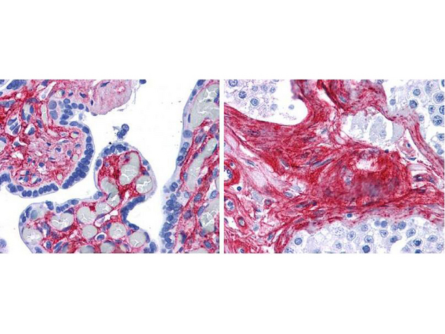 Collagen VI Antibody - Immunohistochemistry of rabbit anti-collagen VI antibody. Tissue: human placenta (left), testis (right). Fixation: formalin fixed paraffin embedded. Antigen retrieval: steamed in 0.01 M sodium citrate buffer, pH 6.0 at 99-100°C - 20 minutes. Primary antibody: collagen VI antibody at 10 µg/mL for 1 h at RT. Secondary antibody: Peroxidase rabbit secondary antibody at 1:10,000 for 45 min at RT. Localization: collagen VI is extracellular. Staining: collagen VI as precipitated red signal red staining of stromal and extracellular spaces in the placenta and extracellular spaces between seminiferous tubules in the testis, with hematoxylin purple nuclear counterstain.
