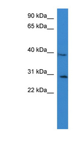 COLQ antibody Western blot of PANC1 cell lysate. This image was taken for the unconjugated form of this product. Other forms have not been tested.